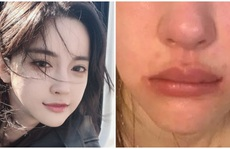 Người mẫu Ban Seo Jin tố cáo bị CEO công ty quản lý bạo hành