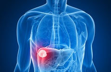 2 loại thuốc 'cũ' bất ngờ cứu người ung thư gan ngoạn mục