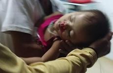 Hy hữu chuyện cháu bé 2 tuổi ở Quảng Nam gặp nạn 'trên trời rơi xuống'