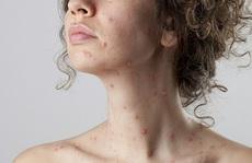Làm sao để da đẹp lại sau bệnh thủy đậu?