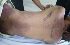 Phạm nhân tử vong trong trại giam với nhiều vết bầm tím