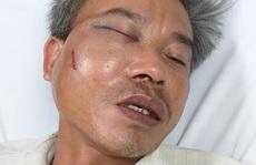 Nhân viên cây xanh bị đánh vì chụp hình băng rôn