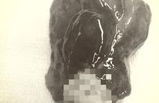 Căng thẳng lấy khối u to bằng quả trứng vịt trong tim người phụ nữ