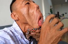 Khát khao của chàng trai 'mặt quỷ', 15 năm ngủ ngồi