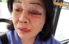 Công an truy tìm kẻ đánh nữ tiếp viên xe buýt 65 bầm mắt