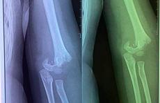 Sở GD-ĐT Hà Nội: Làm rõ vụ 'trẻ 5 tuổi bị ngã gãy tay từ sáng tới trưa mới đưa đi viện'