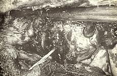 Người phụ nữ bị xương cá đâm thủng ruột, 10 ngày mới phát hiện