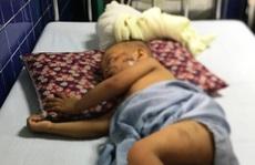 Chó becgie 38kg tuột xích tấn công bé trai 2 tuổi ở Quảng Bình nhập viện