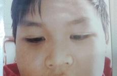 Thiếu niên 15 tuổi ở Hóc Môn mất tích bí ẩn