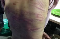 Hỏa tốc điều tra vụ bé gái 12 tuổi nghi bị bạo hành, xâm hại tình dục