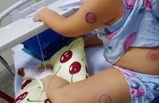 Phát hiện 1 bé gái ở Quảng Bình nhiễm vi khuẩn 'ăn thịt người'