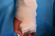 Thiếu niên 17 tuổi nhập viện cùng bàn tay đứt lìa