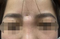 Người phụ nữ bị 'mọc sừng' ra trán sau nâng mũi làm đẹp