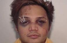 Hình ảnh thảm hại của kẻ cưỡng hiếp 195 người đàn ông