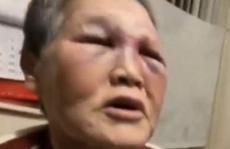 Bị hành hung tại Mỹ, cụ bà quyên góp 1 triệu USD chống phân biệt