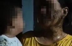 ĐBQH Phạm Thị Minh Hiền: Đổ chất bẩn lên trẻ 2 tuổi là xâm hại trẻ em nghiêm trọng