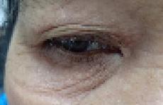 Người phụ nữ bị rận đẻ trứng đầy mi mắt