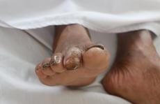 Người đàn ông sốt, ho, khó thở suốt 2 tháng nhiễm vi khuẩn 'ăn thịt người'