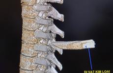 Nam thanh niên nhập viện với mũi dao đâm thẳng vào cột sống