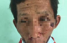 Bắt giữ nghi phạm gây cháy chi nhánh ngân hàng ở Kiên Giang