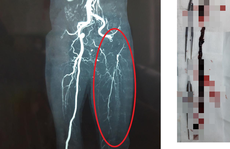 Người đàn ông suýt mất chân bởi triệu chứng nhầm với bệnh xương khớp