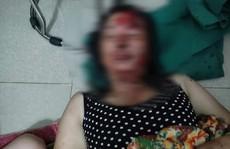 Điều tra việc vợ tố bị chồng dí điện, dìm xuống ao