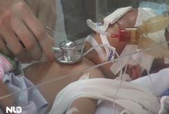 Vụ trẻ sơ sinh bị đâm vào đầu: Bé vẫn đang hôn mê