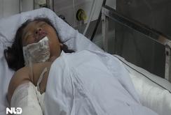 Mẹ tưới xăng đốt con gái 12 tuổi nguy kịch