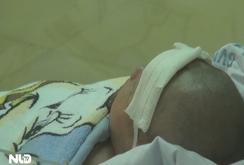 Cháu bé bị đâm xuyên sọ hồi phục thần kỳ