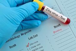 Bản tin NLĐ ngày 25-10: 30 điểm xét nghiệm virus Zika miễn phí ở TP HCM