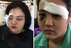 Bản tin NLĐ ngày 4-4 : Điều tra vụ thiếu nữ bị côn đồ hành hung dã man