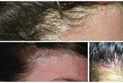 Cảnh báo: Mũ bảo hiểm bẩn gây bệnh nấm da đầu