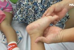 Bác sĩ tư vấn: Những dấu hiệu và cách phòng ngừa bệnh tay chân miệng
