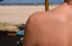 Nhận diện và khắc phục các tác nhân hủy hoại làn da
