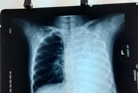 Cứu bé gái có khối u phổi khổng lồ nặng 1,5 kg