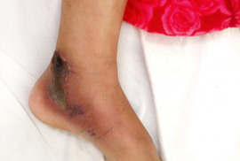 Đồng Nai: Bé gái 11 tuổi bị rắn hổ mèo tấn công