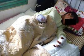 Làm pháo tự chế, học sinh lớp 7 bị dập nát 2 bàn tay