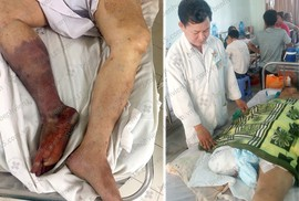Bị cắt cụt chân do uống thuốc không đều