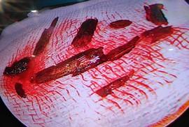 Đi xe tự té, bị 10 mẻ cây đâm vào mắt