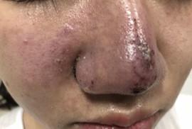 Cô gái 23 tuổi bị mưng mủ, hoại tử mũi sau tiêm filler