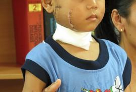 Bé 6 tuổi bị cánh quạt công nghiệp chém thấu xương
