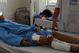 HY HỮU: Người bị xe container cán nát xương hai đùi vẫn có thể đi lại được