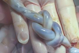 Hy hữu cứu sống bé gái sơ sinh có dây rốn thắt nút như bím tóc