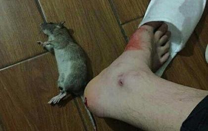 Nhập viện cấp cứu vì chuột cắn