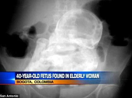 Thai nhi 44 năm trong bụng bà cụ 84 tuổi