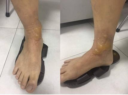Đi massage chân, một nam giới nhập viện vì bỏng phức tạp