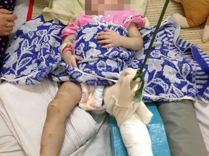 """""""Mẹ nuôi"""" đánh bé gái 1 tuổi đến gãy chân chỉ vì biếng ăn, hay khóc"""