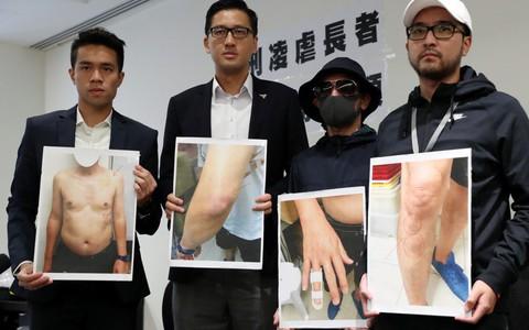 """Cảnh sát Hồng Kông """"tra tấn"""" cụ ông trong bệnh viện"""