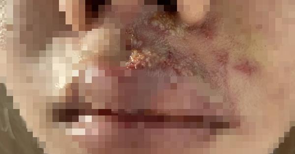 Cô gái tiêm thuốc giải sau khi làm đẹp ở TP HCM