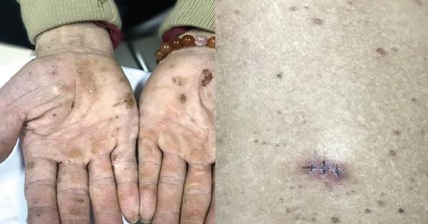 Nhiễm độc thạch tín gây ung thư da từ mỹ phẩm không rõ nguồn gốc